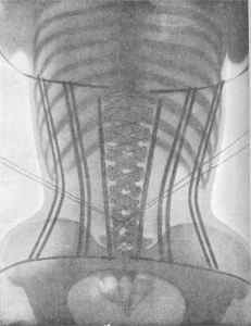X-Ray of a Woman in a Corset, 1907.