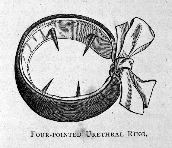 Four Pointed Urethral Ring for the Treatment of Masturbation, 1887.(Image via Wellcome Library CC BY 4.0)